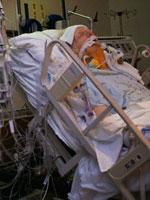 شیوع بیماری سالک در مشهد